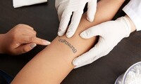 Laser Tattoo Removal for a Small, Medium, or Large Area at RENEW Laser & Skin Care (Up to 91% Off)