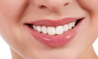 Dental Exam, Cleaning, and X-rays  at Kalamazoo Valley Dental Care (60% Off)