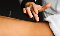 Up to 72% Off Acupuncture Sessions at Dao Acupuncture PC