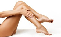 $101 for a Sclerotherapy Session of Two Vials and a Varicose and Spider Vein Evaluation ( $200 Value)