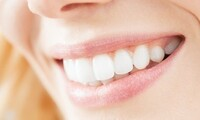 Cleaning, Digital X-Ray, and Exam with Optional Sonicare Toothbrush at North Pier Dental Associates (87% Off)
