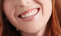 Deep Teeth Cleaning at Heather Ridge Dentistry & Orthodontics (Up to 65% Off)
