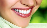 $45 for Dental Package with Cleaning, X-Rays, and Exam at Complete Dental Of OKC ($325 Value)