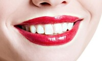 Exam with Cleaning and Panoramic X-ray, or Teeth Whitening at Family Dental Care (Up to 81% Off)