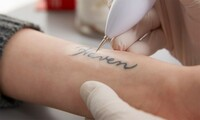 Laser Tattoo Removal Session at Marilyn Pelias, MD Cosmetic Surgery Center (Up to 50% Off). 3 Options Available.